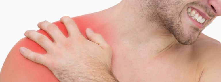 Rotator Cuff Related Shoulder Pain