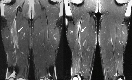 Mri Of Bflh Tear At 10 Days And 30 Days